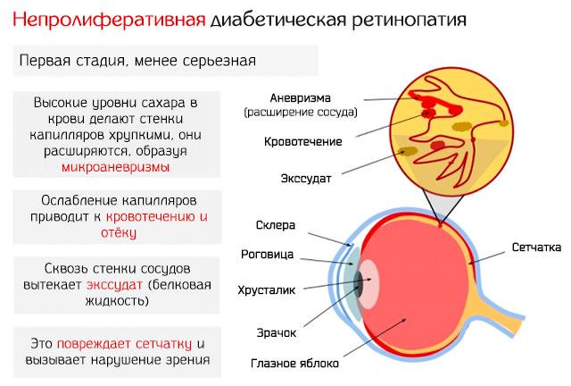 Непролиферативная диабетическая ретинопатия – развитие заболевания