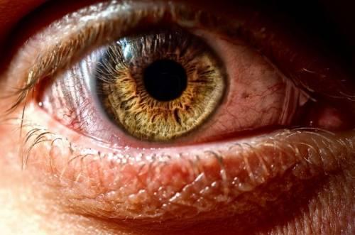 Воспаление глаза при сухости роговицы
