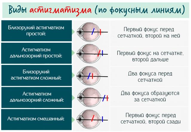 Типы астигматизма по фокусным линиям