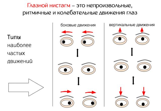 Глазной нистагм – это непроизвольные, ритмичные и колебательные движения глаз