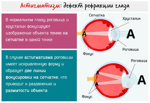 Типы астигматизма глаз – проявления и возможности коррекции зрения