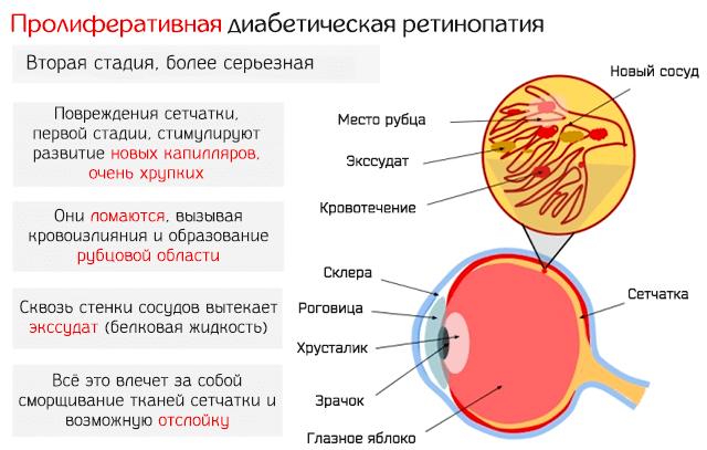 Пролиферативная диабетическая ретинопатия – вторая стадия заболевания