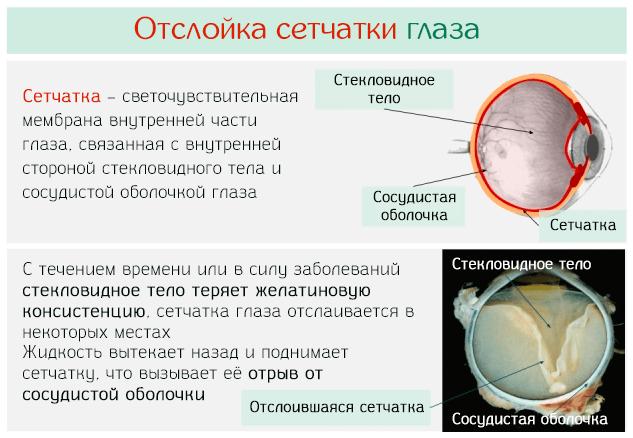 Причина и процесс отслойки сетчатки глаза