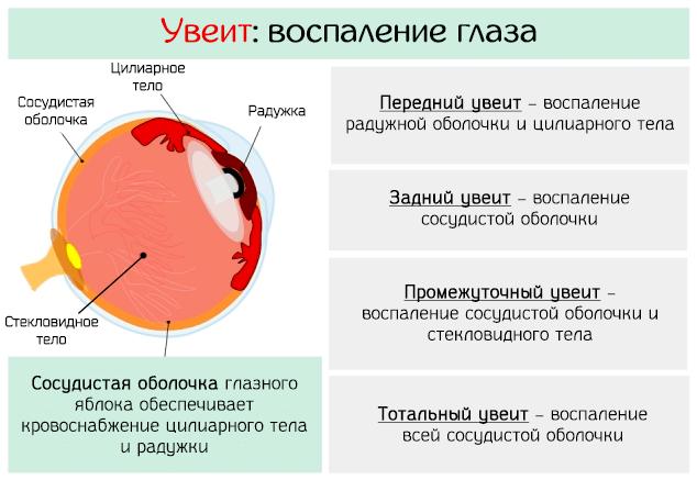 Типы воспаления глаза – увеита