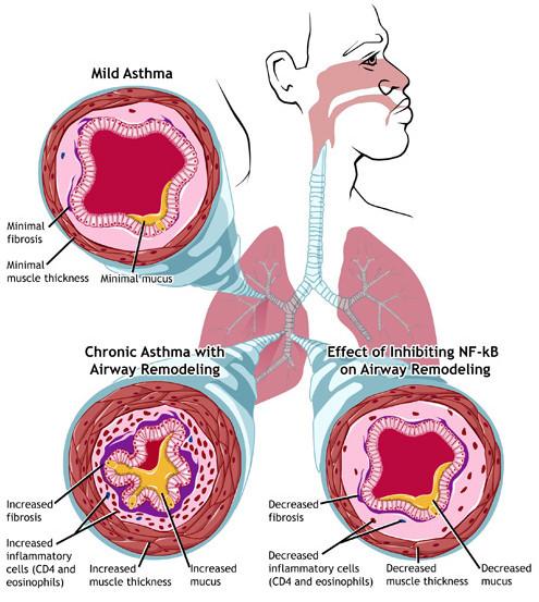 Карта развития и симптомов бронхиальной астмы