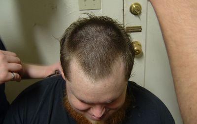 Печень и выпадение волос на голове