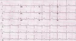 Учащенное сердцебиение. Лечение частого и сильного сердцебиения. Давление и сердцебиение: что делать, когда сильно стучит сердце?