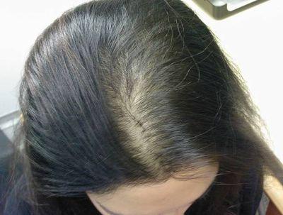 Проявление диффузного облысения на голове девушки