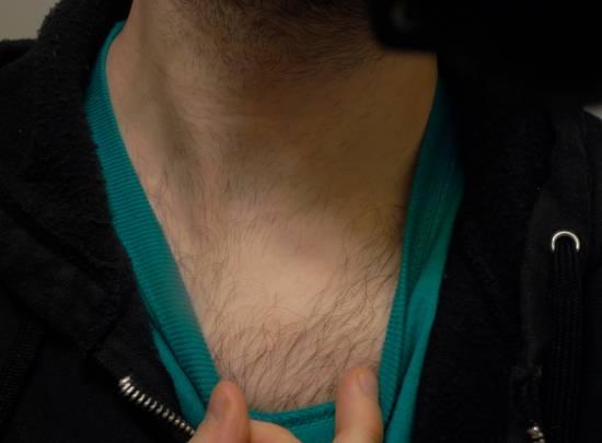 Восстановление луковиц волос мужчин
