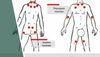 Фибромиалгия - симптомы и лечение