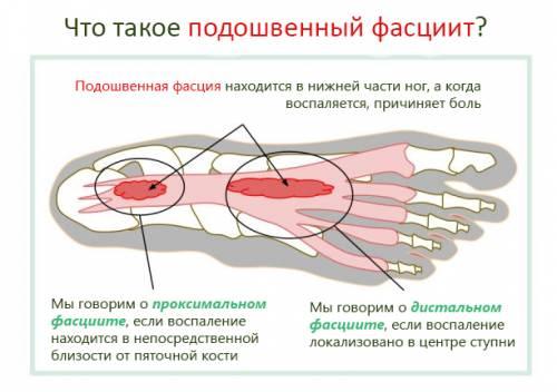 Фасциит симптомы и лечение