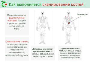 Как проходит сканирование костей скелета