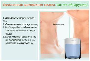 Увеличение зоба щитовидной железы