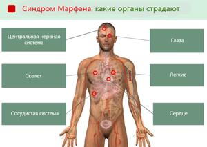 Синдром марфана глазные проявления