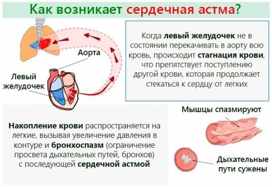 как отличить сердечную недостаточность от бронхиальной астмы