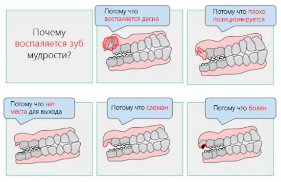Как снять воспаление с десны зуба мудрости