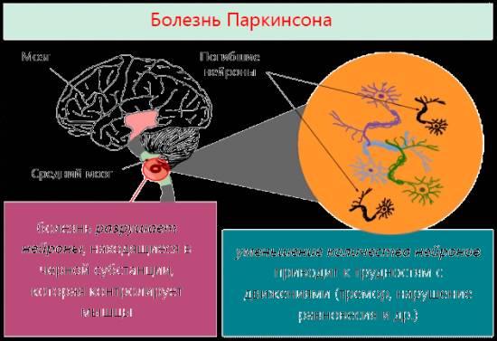 Болезнь Паркинсона — причины возникновения, признаки и симптомы, лечение болезни Паркинсона