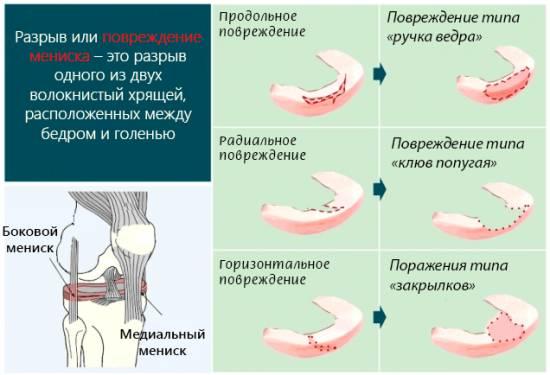 Мениск коленного сустава функции травмы диагностика лечение
