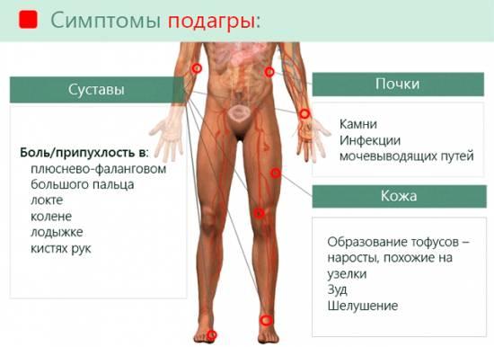 Чем лечить подагру на большом пальце ноги как снять боль