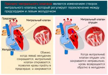 Прогиб митрального клапана в сердце