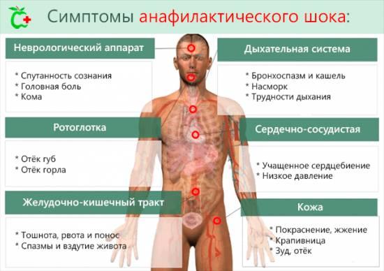 Причины возникновения анафилактического шока