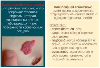 Капиллярная гемангиома – причины появления и опасные последствия