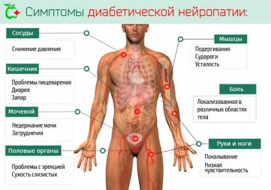 Симптомы и способы лечения диабетической невропатии