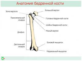 Перелом бедренной кости – симптомы, реабилитация и последствия