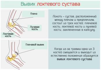 Вывих локтевого сустава: симптомы и лечение (фото)