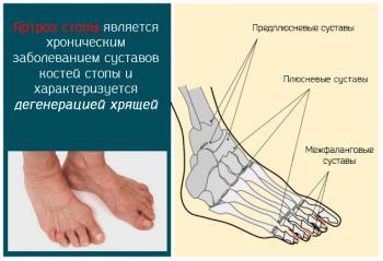 Артроз первого плюснефалангового сустава стопы