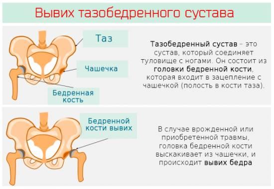 врожденный подвывих сустава