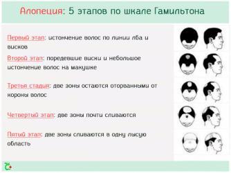 Типы выпадения волос