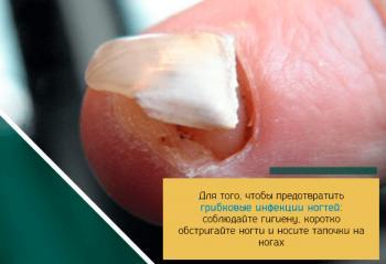 Грибок ногтей. Грибковые заболевания ногтей: симптомы 25