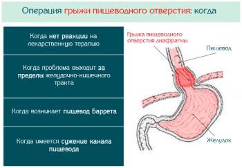 Операция при грыже пищеводного отверстия диафрагмы