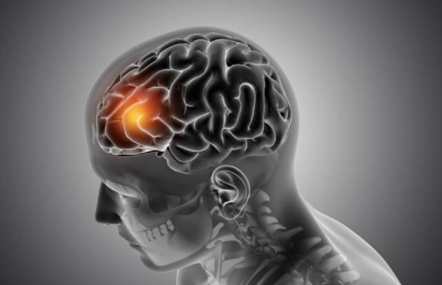 Мужская медицинская фигура с выделенной передней частью мозга