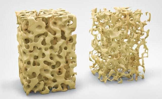 Изменение костной ткани при остеопорозе