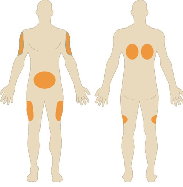 Рекомендуемые зоны для подкожного укола