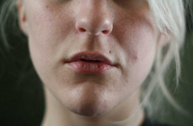 Растрескавшиеся губы девушки