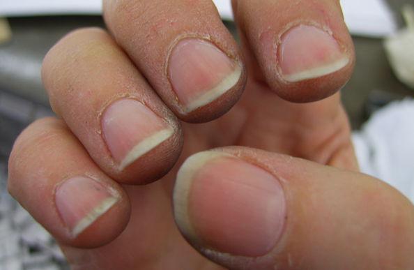 Потрескавшаяся кожа вокруг ногтей