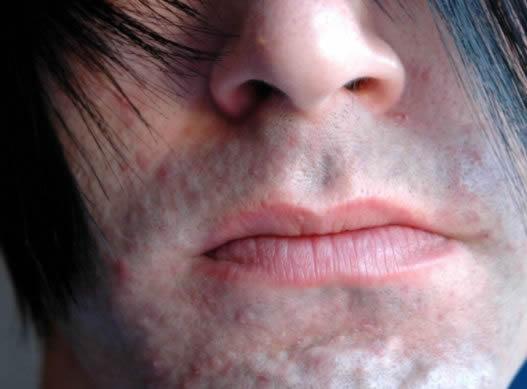 Рубцы на коже лица после акне