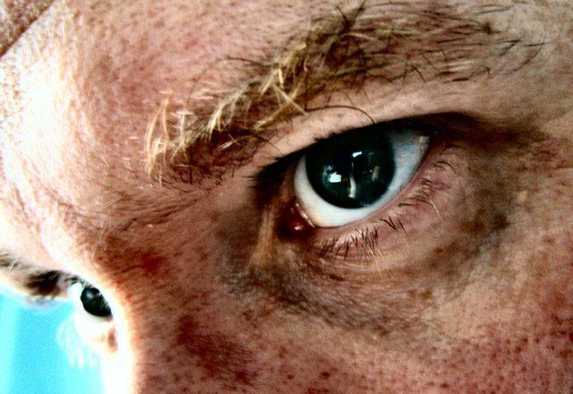 Темные круги под глазами мужчины