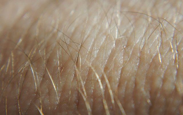 Появление грубых волос на коже рук