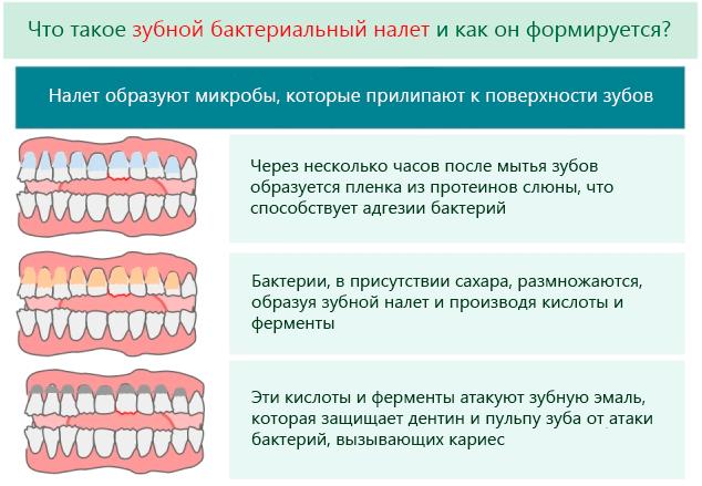 Что такое зубной бактериальный налет и как он формируется