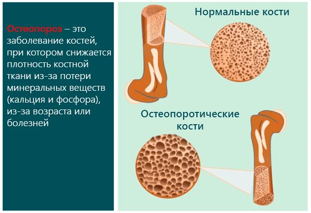 Остеопороз и вымывание кальция из костной ткани