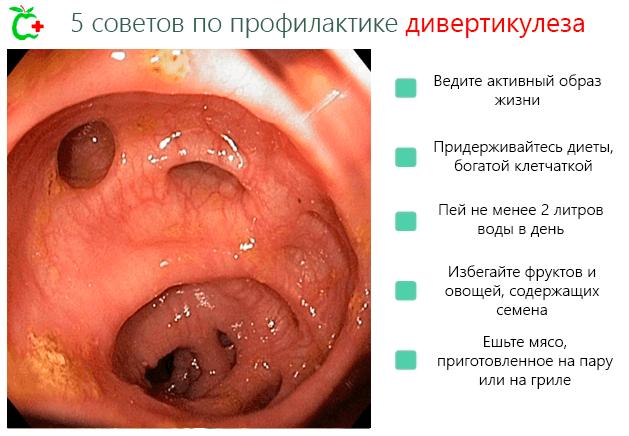 5 советов профилактики дивертикулеза кишечника