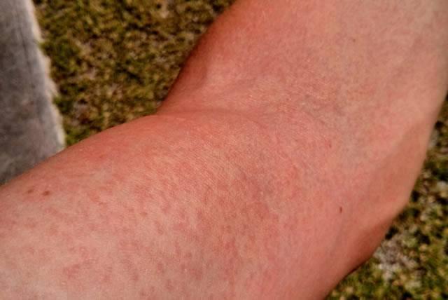 Типичные кожные высыпания при заражении вирусом Зика