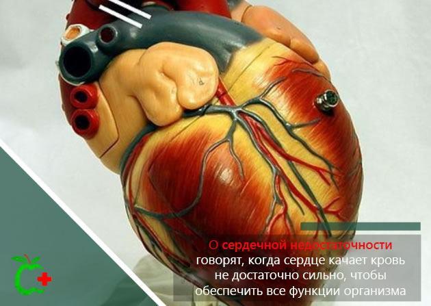 Пластиковая модель сердца – сердечная недостаточность