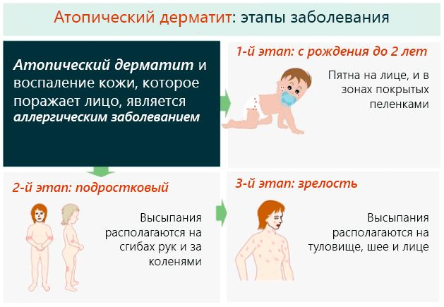 Атопический дерматит и воспаление кожи, которое поражает лицо, является аллергическим заболеванием