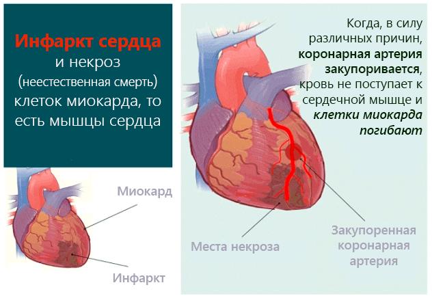 Инфаркт сердца и некроз (неестественная смерть) клеток миокарда, то есть мышцы сердца