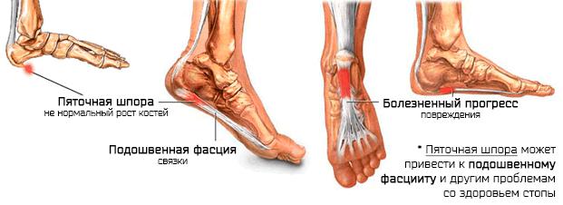 Пяточные шпоры – хроническое воспаление, вызывающее боль в пятке